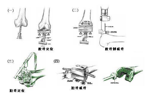 暴露全膝关节,清除增生滑膜,骨刺,下肢力线定位,确定截骨厚度后,行
